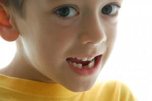 Alinear los dientes en los pequeños