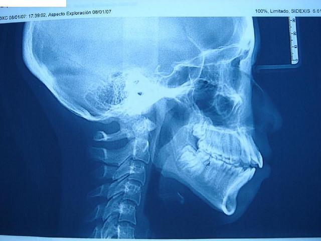 Radiografias De Dientes Ii Blog Dentista En Tu Ciudad