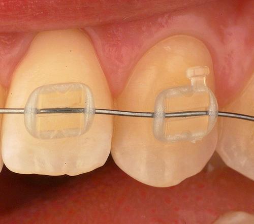 Nueva forma de reforzar los brackets