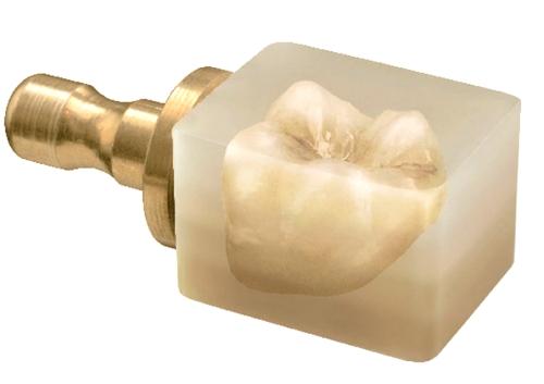 Preparación del diente antes de colocar una corona
