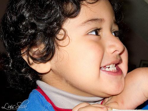 Las infecciones en el diente temporal afectan al diente definitivo