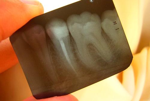 Síndrome del diente fracturado; que es