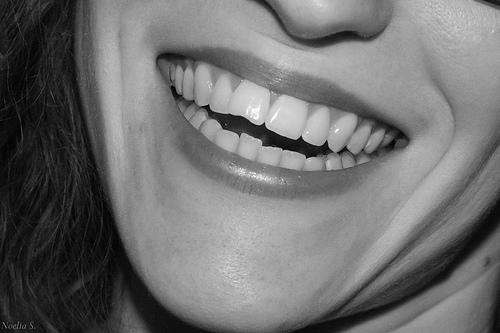 Término dentales que debes conocer