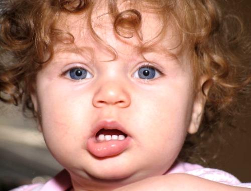 Tratamientos dentales; rayos x y niños