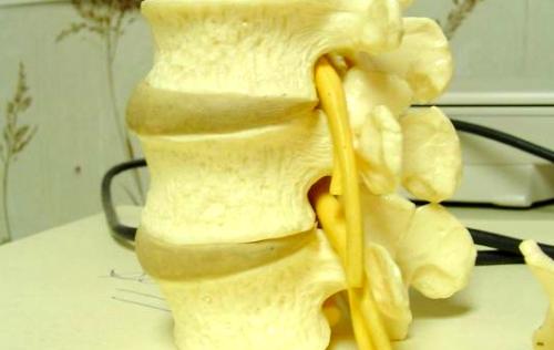 Espina Bífida y salud oral