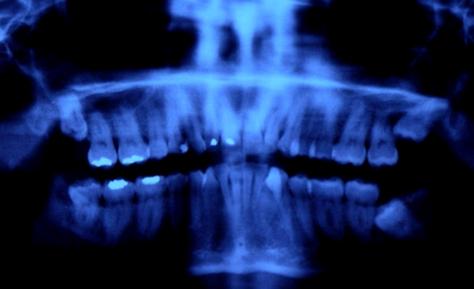 Problemas comunes de los rellenos dentales