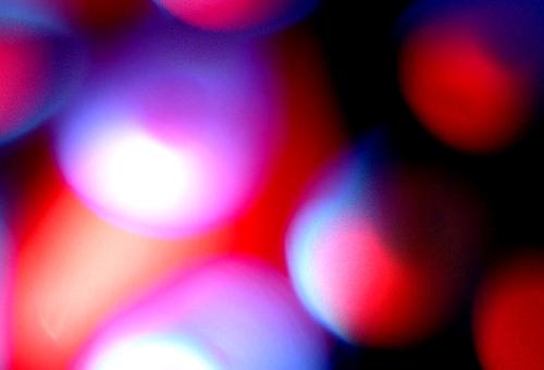 Trastornos sanguíneos y sus efectos orales; Policitemia Vera