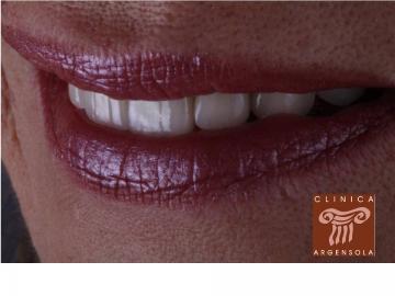 Clínica Dental Argensola
