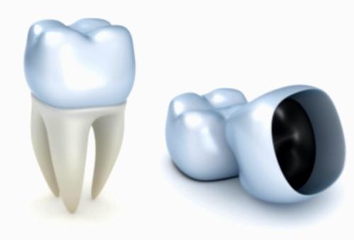 Que hacer cuando una corona dental se cae