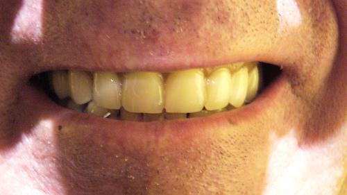 Causas más frecuentes de la decoloración de los dientes