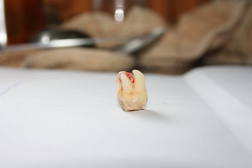Cómo ayuda el dentista en los dolores de muela