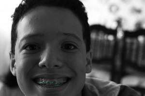 Cómo cuidar dientes con correctores