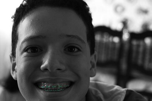 Qué sentimos al tener correctores dentales