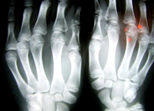 El tratamiento periodontal alivia los síntomas de artritis