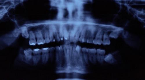 Salud oral y Artritis Reumatoide