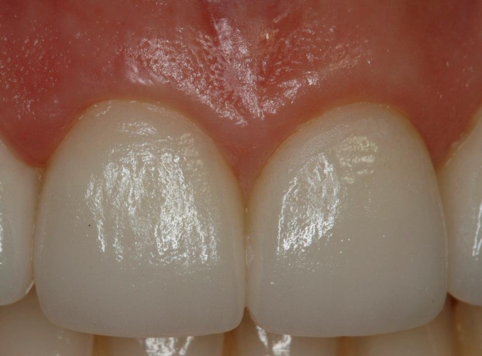 ejemplo-corona-disilicato-dental-navarro