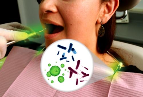 Clips de los baberos dentales y bacterias orales
