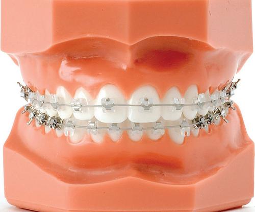 Elásticos en la ortodoncia