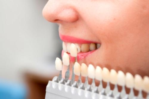 Carillas dentales, procedimiento (II)