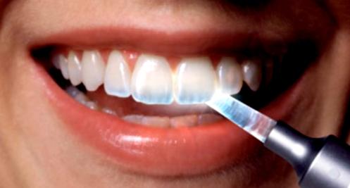 Factores que estimula la erosión del esmalte dental