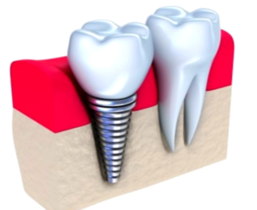 Implantes dentales, solo en última instancia