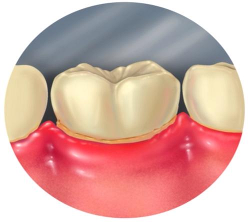 Nueva forma para tratar la enfermedad periodontal