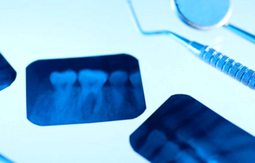 Rayos X dentales detectarían la osteoporosis