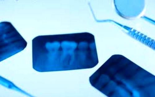 Perdida de hueso y enfermedad periodontal