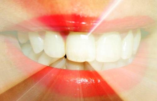 Blanqueadores dentales podrían debilitar el esmalte