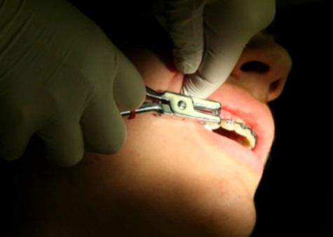 Ortodoncia; aparatos fijos, mejores y económicos