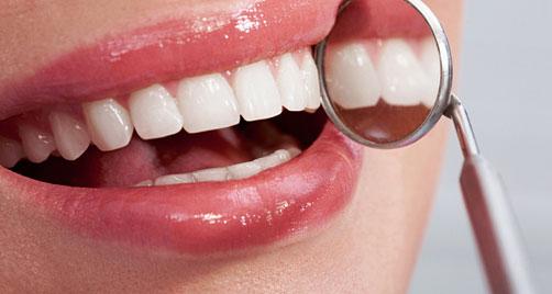 Odontal lanza oferta para blanqueamiento dental
