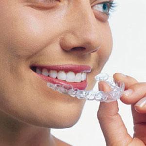 descuentos en ortodoncia Madrid