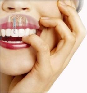 precios implantes dentales