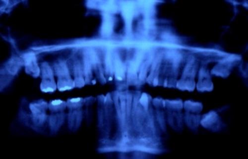 mercurio en Odontología