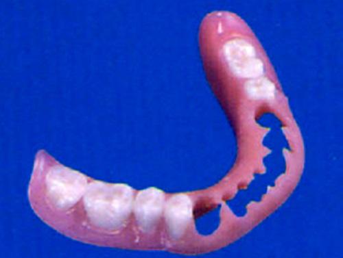 Dentaduras parciales,