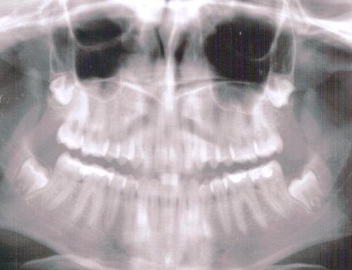 Factores de riesgo de fisuras orales