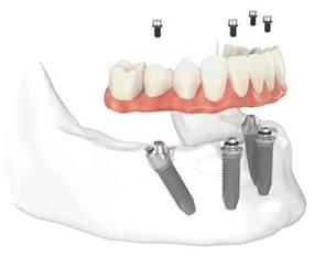 implantes dentales en un día