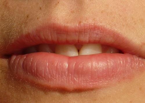 Tipos comunes de periodontitis