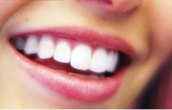 Implantología dental avanzada: Dientes fijos en un día