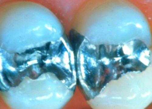Cuando reemplazar un relleno dental