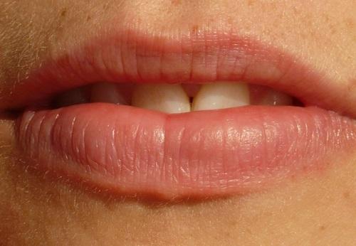 Enfermedades orales