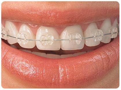 ortodoncia con zafiro