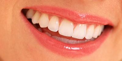 Implantes dentales en León