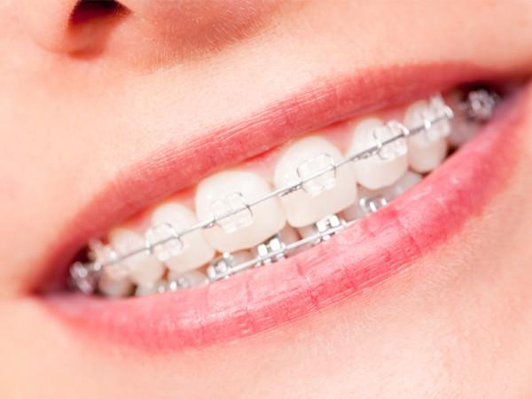 Ortodoncia en Madrid centro: cuida y mejora tu sonrisa