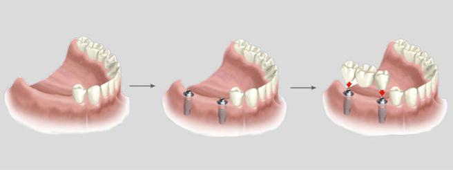 dentista en las rozas