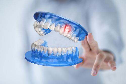 Ventajas del implante dental