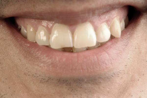 Cómo tratar a las encías inflamadas
