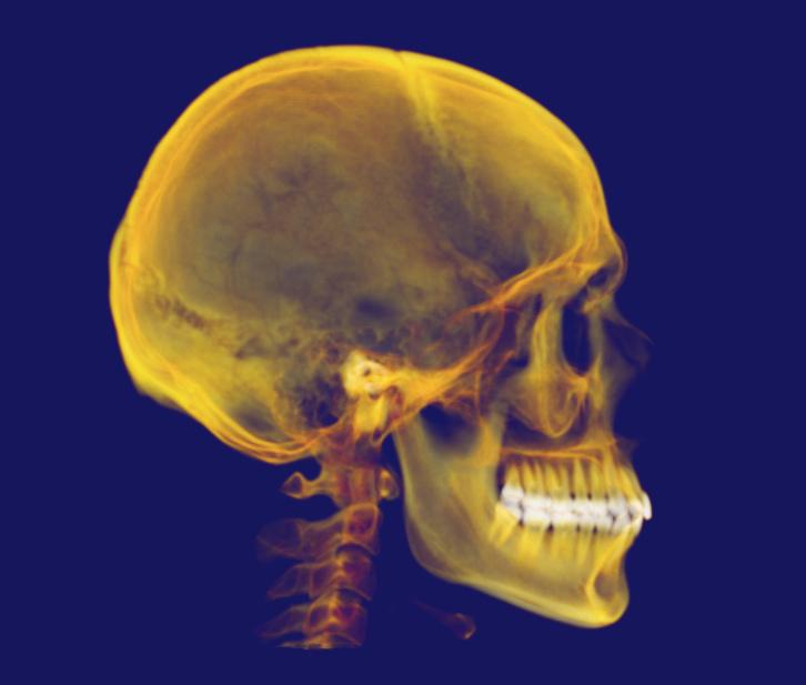 Edad mínima para colocarse un implante dental