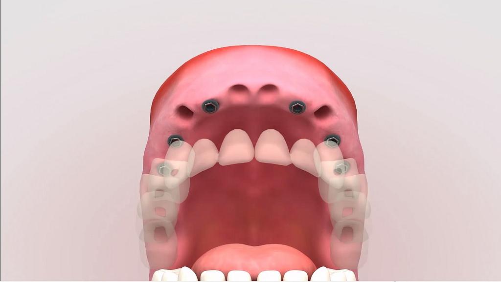 Qué hacer si se pierde un diente