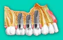 Cepillos interdentales para implantes